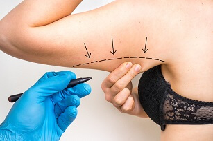 Plastic surgery doctor draw line on patient arm - cosmetic surgery concept
